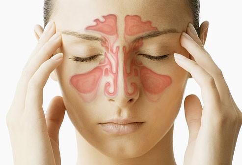 Sinusite.jpg