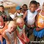 crianças albinas